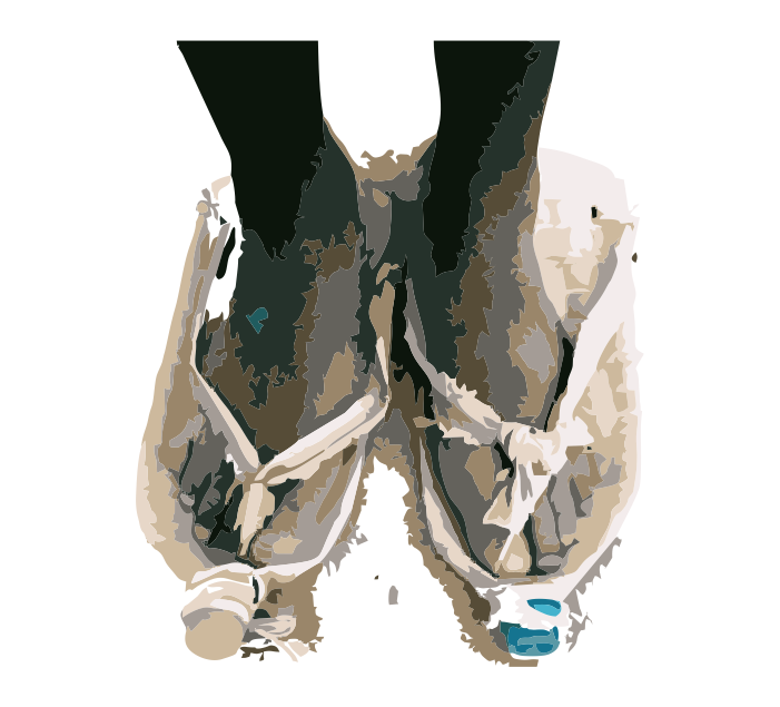 Why Feet #1B